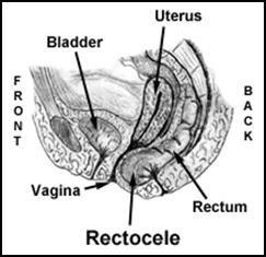 rectocele1